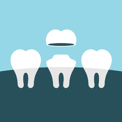 Dental Crowns North Kellyville